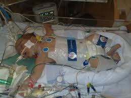 abogados lesiones nacimiento new jersey philadelphia cooling therapy negligencia medica